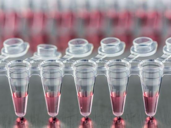 装有PCR试剂的Eppendorf管